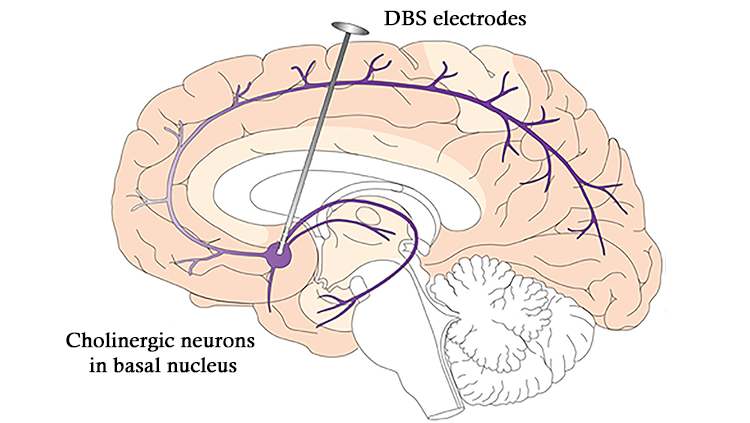 Drawing of brain corrected