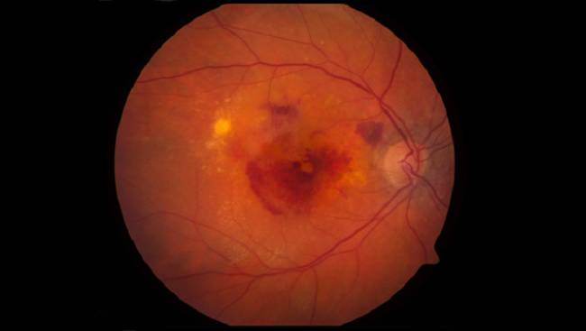This photograph shows an eye affected by a severe form of macular degeneration, in which blood vessels leak fluid and blood under the retina.
