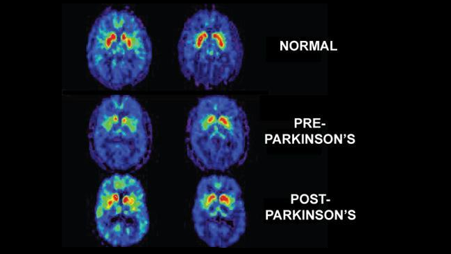 Brain scans comparing a normal brain to the pre-Parkinson's and post-Parkinson's brain.