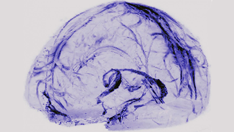 Image highlighting blood vesselsin the brain suspected to be part of the lymphatic system