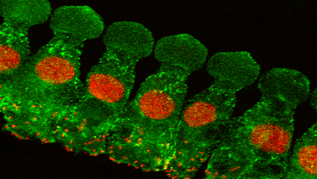 Called hair cells (pictured in green), each cell has tiny hair-like projections that vibrate along with the sound waves, triggering a sequence of events inside the cell to generate an electrical signal. Hair cells quickly transmit these signals to brain cells using synaptic ribbons (pictured in red), structures specialized for rapid signaling — important for hearing sound.