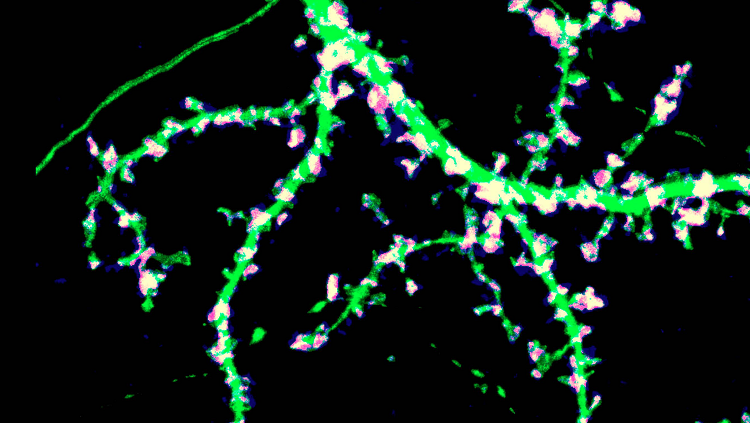 Image of a neuron and its synapses