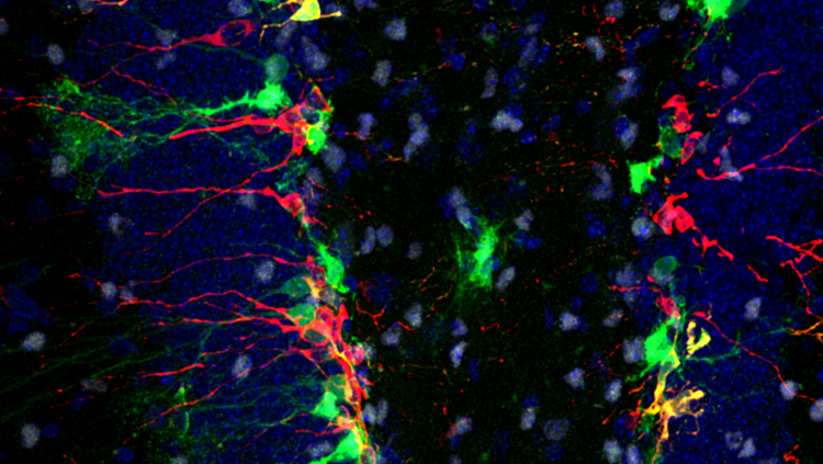 Image of a mouse hippocampus in red, green and blue