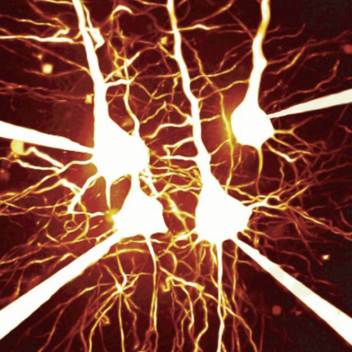 Image of pyramidal cells