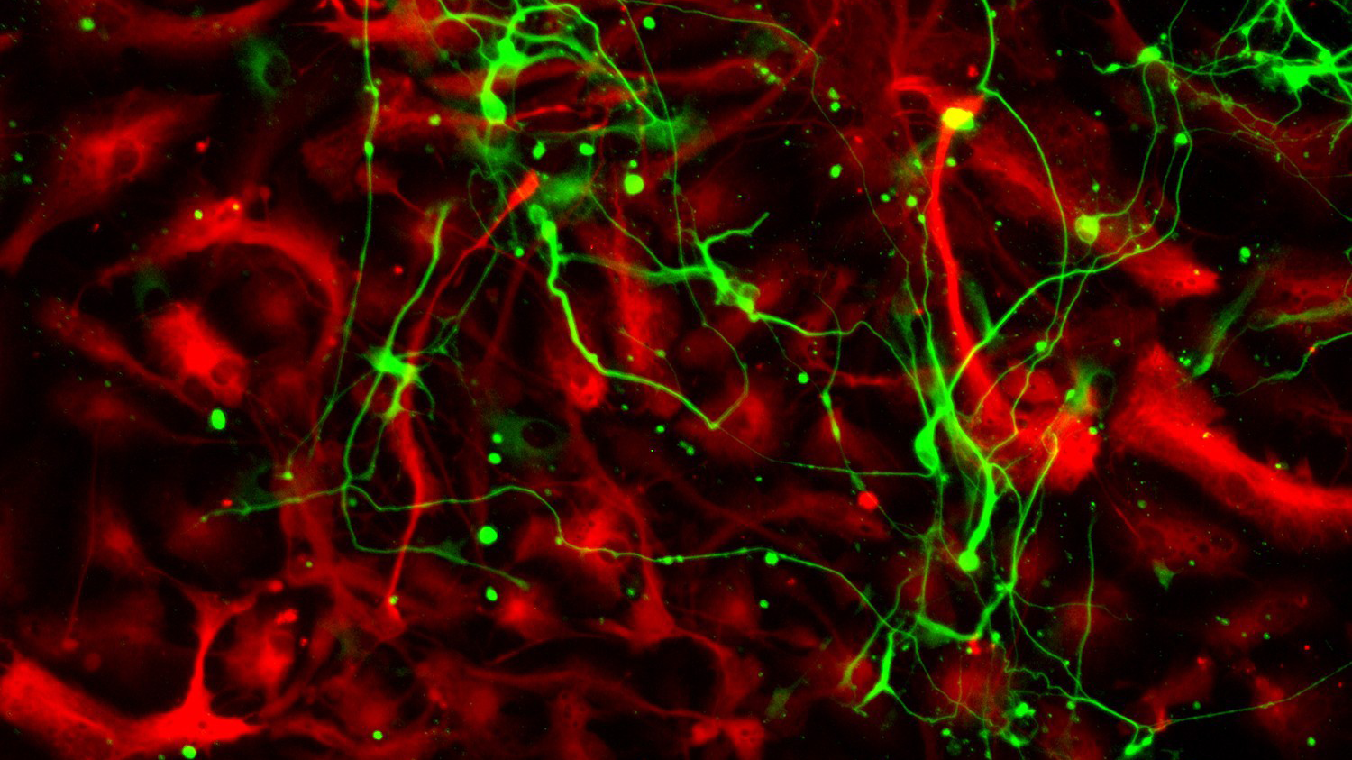 Image of astrocytes in red and some green