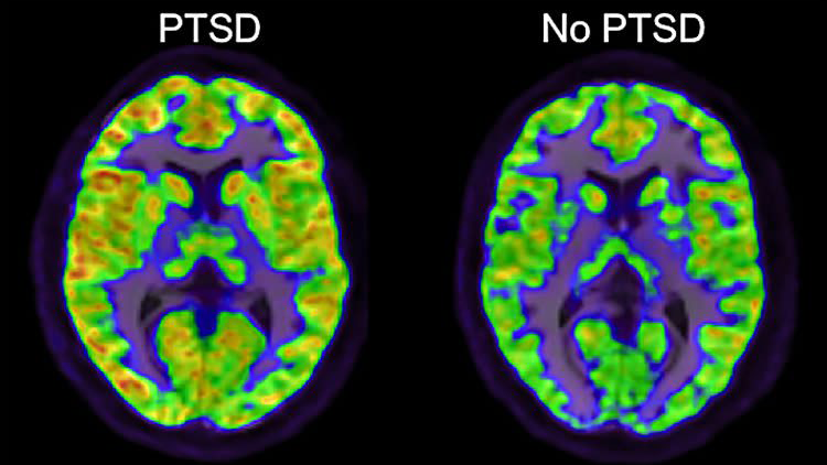 Image of brain with and without PTSD