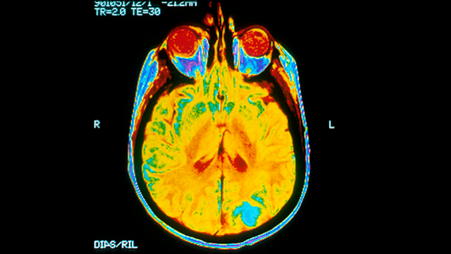 Image of an MRI scan of a cancerous tumor in a brain