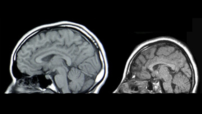 Scans of a brain with microcephaly (right) and a normal sized brain.