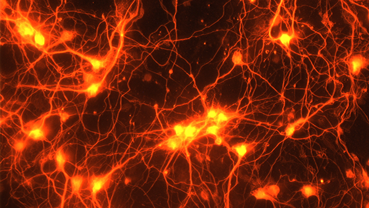Image of healthy neurons grown in a dish, sprouting new connections