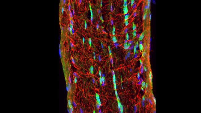 The image shows the optic nerve in a mouse with neuron cell bodies (blue) and support cells called glia (red and green).