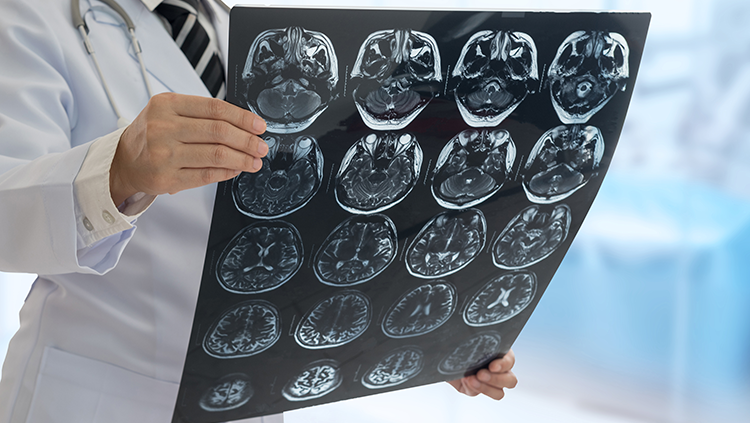 A doctor holding brain scan images