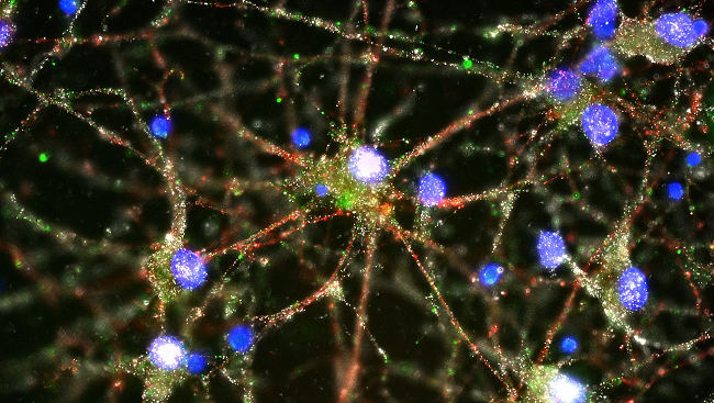 This immune protein (stained green in the micrograph above) helps brain cells prune extra connections or synapses (red and white), indicating this process may go awry in schizophrenia.