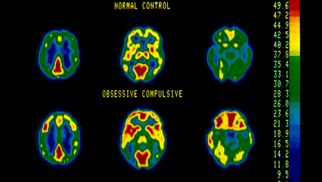 Scans of a normal brain versus a brain with OCD.