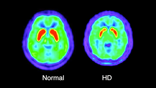 Brain image scans of a normal, healthy brain compared to a brain with Huntington's disease.