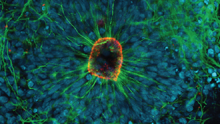 This mini-model lets us watch the birth of new brain cells.