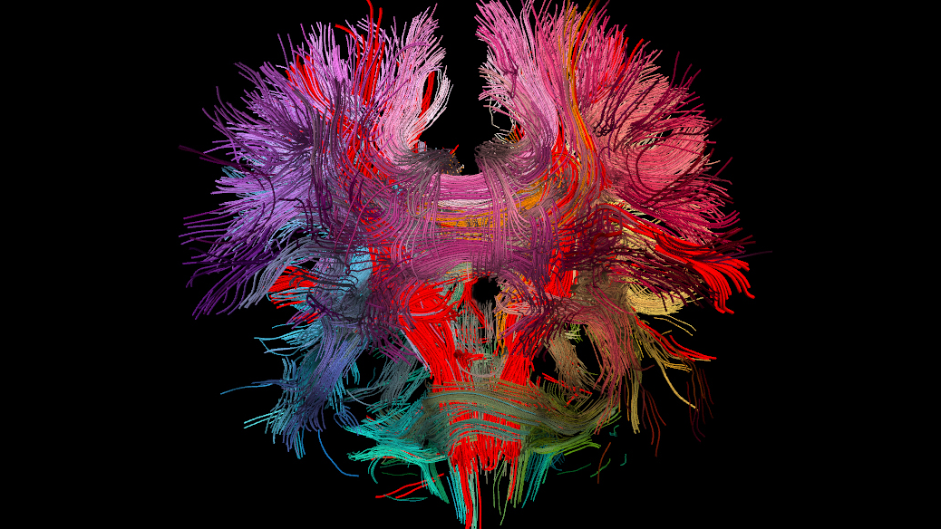 Image of the DTI scan of the human brain.