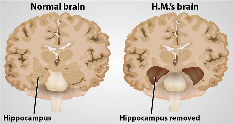 Image of HM's brain compared to a normal brain