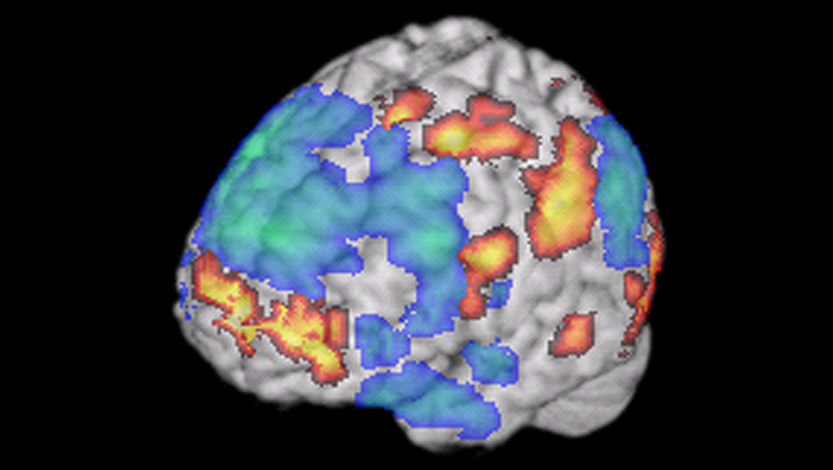 Image of an fMRI