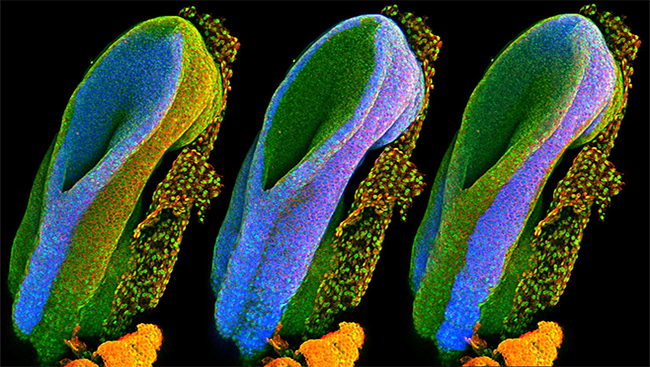 The mouse embryos depicted in this image highlight each of these tissues in blue. The image on the left shows the neural tube, which will form the brain and spinal cord. The middle image highlights tissue that will develop into all of the body's internal organs, and the right image shows tissue that will later become hair, skin, and teeth.