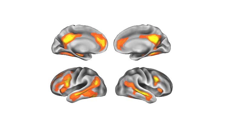 Images of brain during motherood