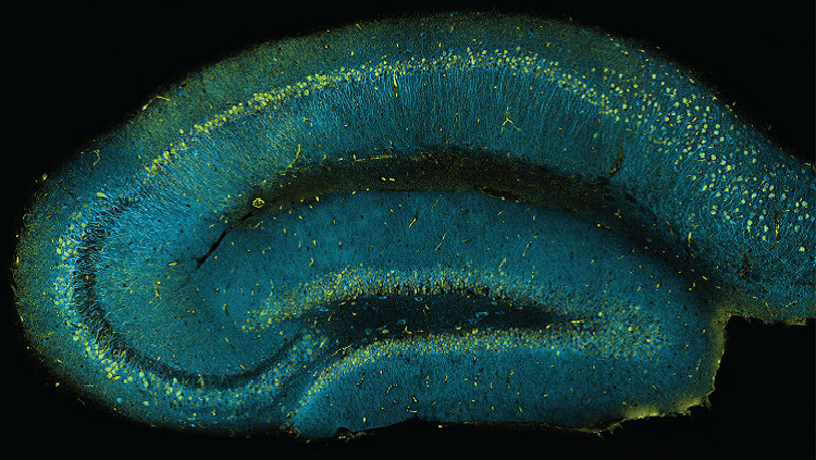 image of a mouse hippocampus