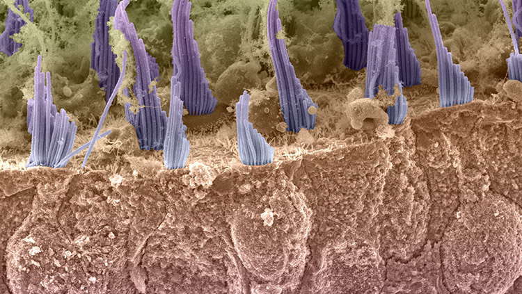 Image of hair cells