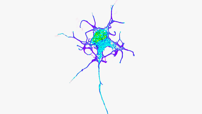Specialized cells called motor neurons (pictured) carry instructions from the brain along long cables, called axons, that stretch from your spinal cord to the muscles in your hands and feet.