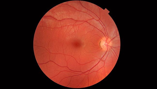 In this photograph of the interior of a healthy human eye, the macula can be seen in the center of the image.