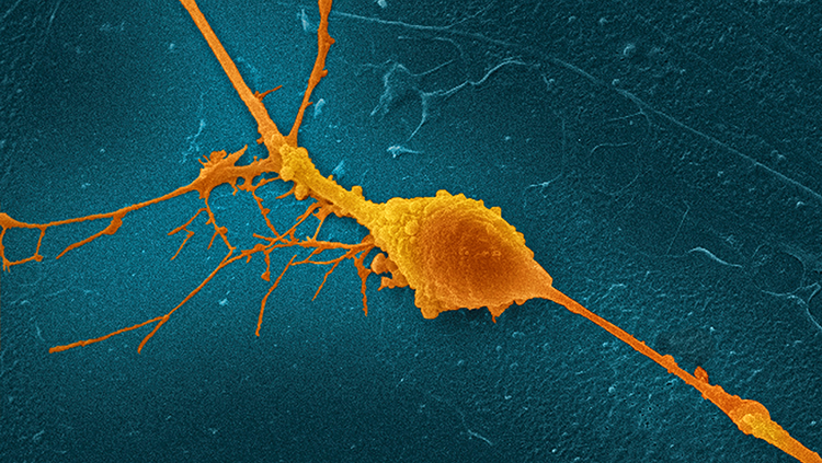 Retinal Ganglion Cell