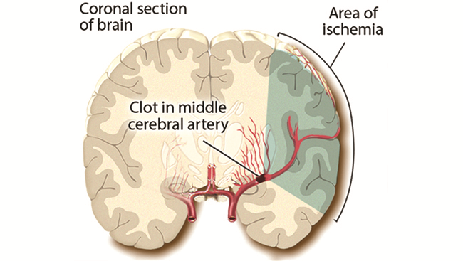 Brain illustration showing stroke area