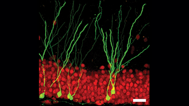 A cellular image shows the presence of new brain cells, labeled with GFP, among older ones.