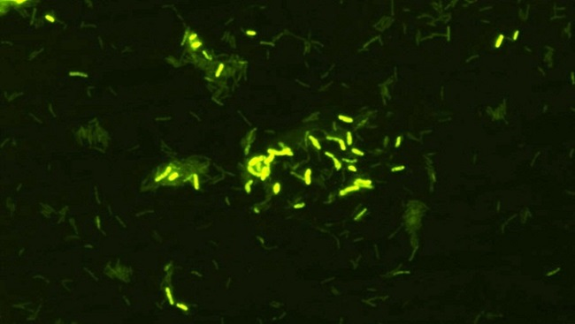 Christopher Lowry has studied the effects of treatment with a common soilbacterium called Mycobacterium vaccae (pictured) in mice. He found that M. vaccae increased the levels of the brain chemical serotonin and decreased anxiety-like behaviors.