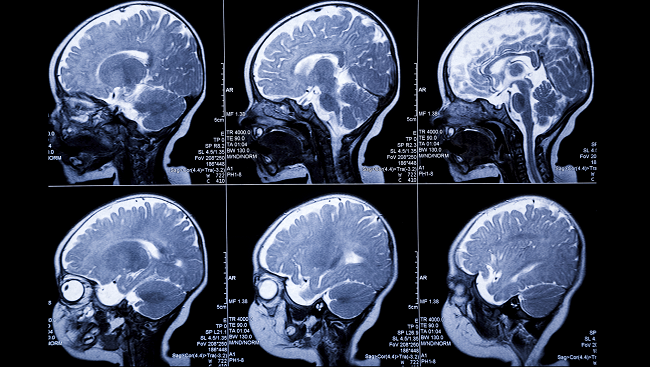 MRI scans of an infant's brain through different developmental stages.