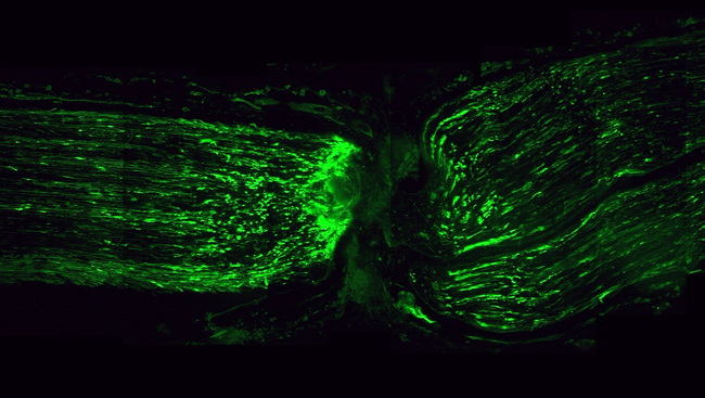 Axons in action