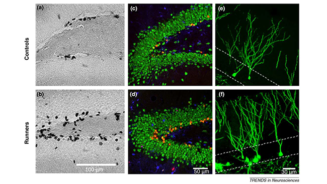 The images above show newly-born neurons in the dentate gyri of a sedentary mouse (top) and a mouse that ran on a wheel (bottom), as viewed through different microscopes. The running mouse has more new neurons in the dentate gyrus compared to the sedentary mouse.