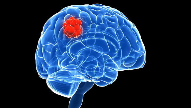 Image visualizing a brain with a mass developing inside.
