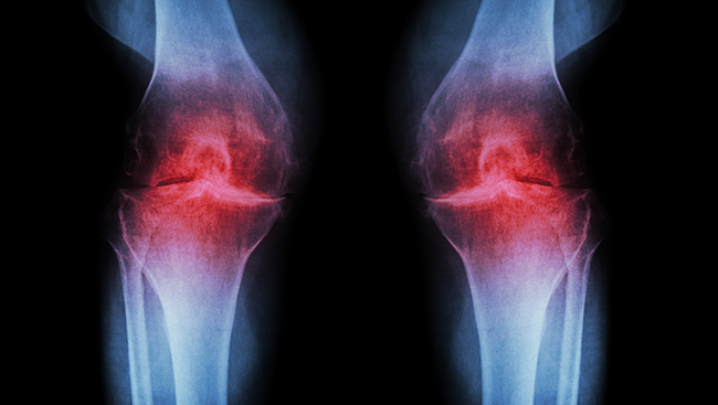 Pain serves a vital purpose, drawing our attention to tissue damage to prevent further damage and help us heal after injury. But for some pain becomes a chronic condition, and opioids — the most potent pain relievers available — can cause devastating side effects.