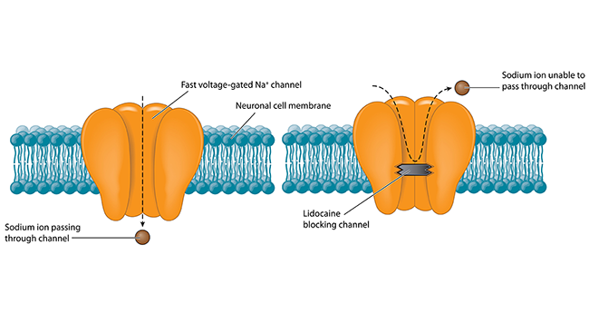The flux of charged atoms in and out of neurons drives electrical signaling. Sodium ions pass through tiny pores in the cell membrane called sodium channels. Anesthetic drugs like lidocaine squelch pain signals at the source by blocking these channels.