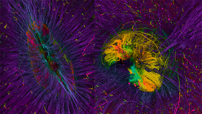 This image shows the retinas of two embryonic mice. The retina on the left is healthy; the axons (purple) are all arranged on the same plane and growing toward the center. The retina on the right, however, has axons (red and yellow) that are extending in abnormal directions, invading other parts of the eye.