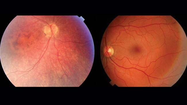 Contrast of normal retinas and ones with LCA