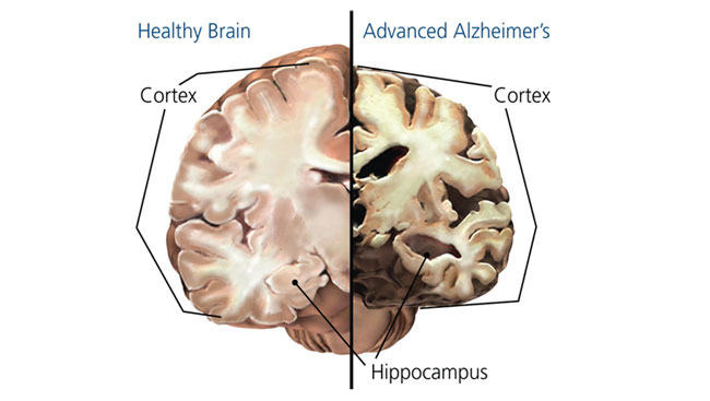 Image of a brain with Alzhimer's disease
