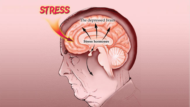 An illustration of brain areas affected by stress