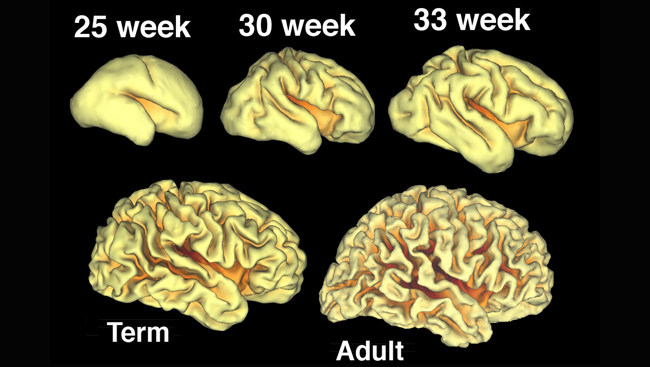 Images of brains in five states of development: 25 weeks, 30 weeks, 33 weeks, full term, and adult.