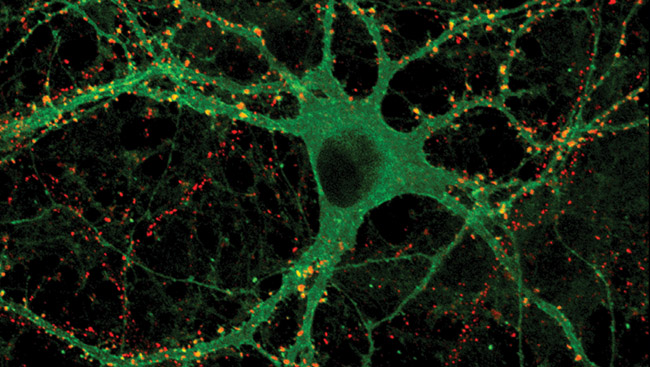The optical switch molecules in a nerve cell