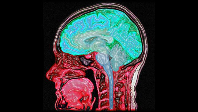 MRI of the human head