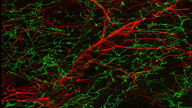 Studies in animals led researchers to new understandings about the molecules the blood-brain barrier welcomes in and those it turns away. This image displays an outline of a blood vessel (red) in the brain of a healthy mouse.