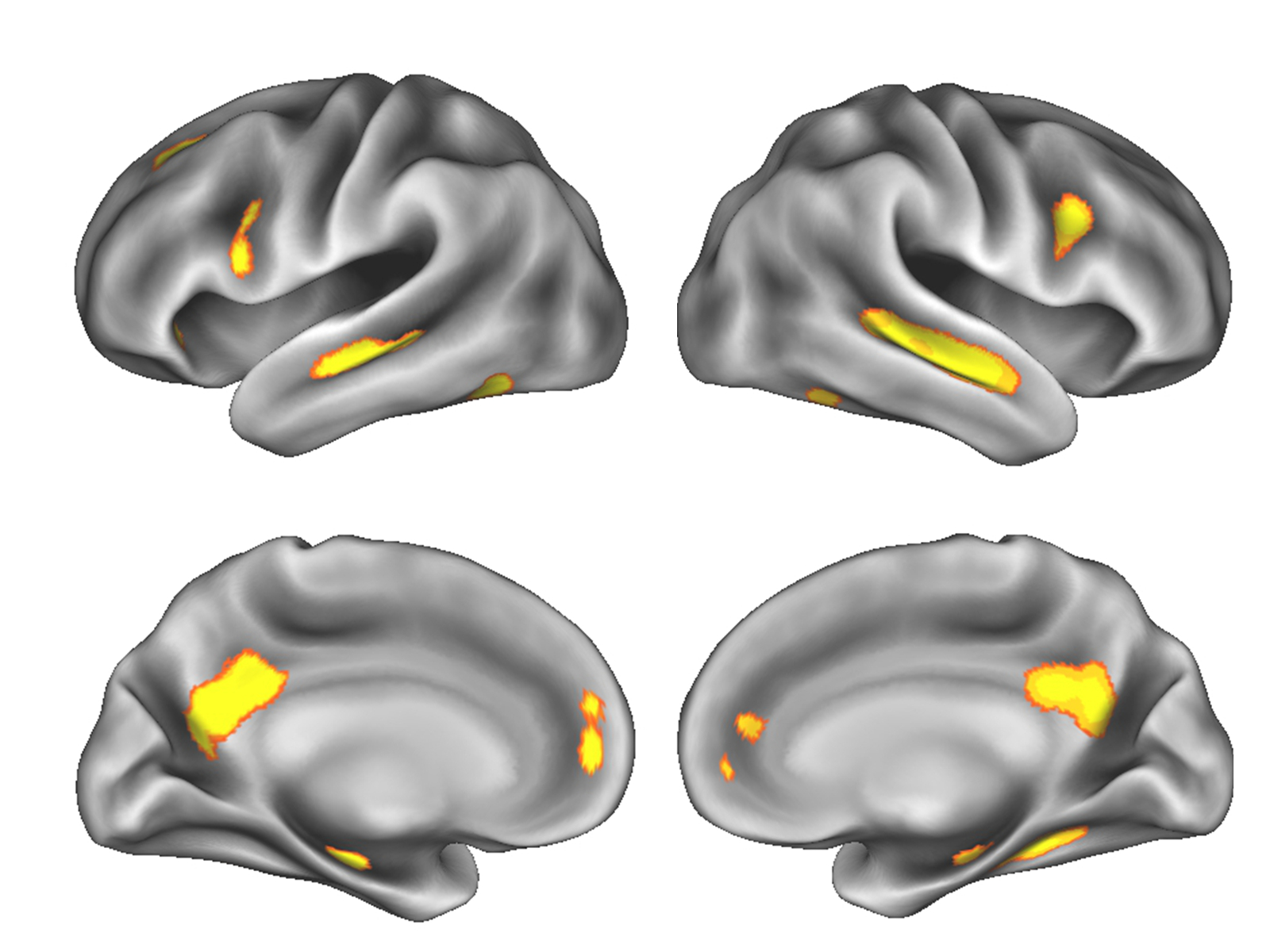 Image of gray matter changes in the brain during pregnancy