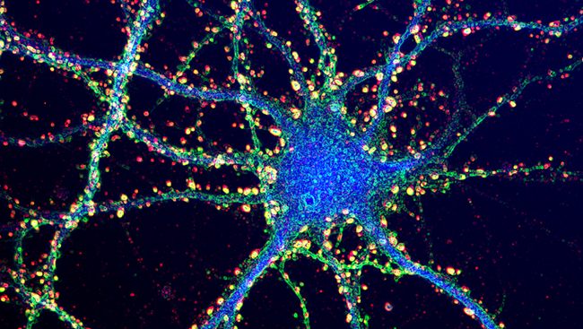 This image shows a neuron from a mouse hippocampus, an area of the brain responsible for memory, with synapses labelled in yellow and red.