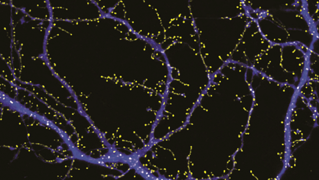 A neuronal glutamate transporter clusters at post-synaptic sites. Confocal image of 11 day old cultured hippocampal neurons co-transfected with constructs expressing soluble cyan fluorescent protein (blue) and full-length glutamate transporter, EAAT3, fused to a yellow fluorescent protein (yellow). EAAT3 is seen in clusters on the dendritic surface and on spines and filopodia, whereas the soluble cyan fluorescent protein fills the entire cell.