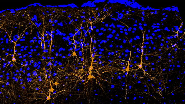 In this picture of a mouse brain, neurons (yellow) from the brain's movement area (motor cortex) extend their long axons to a portion of the brain responsible for hearing called the auditory cortex.